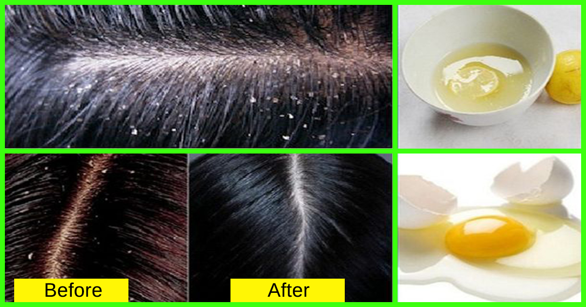 How To Get Rid Of Dandruff – Eliminate Flaking Scalp Issues